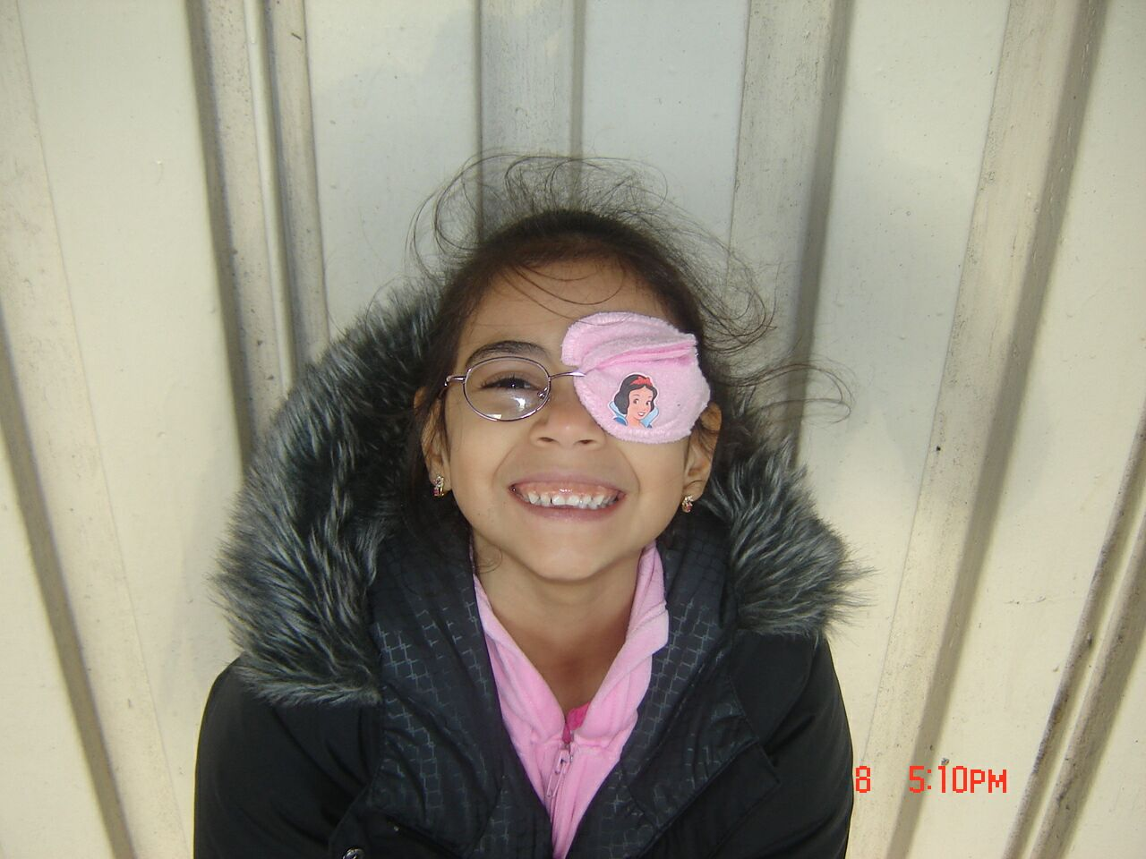 the best eye patch for kids worn by Nixi